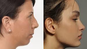 recessed versus forward faces