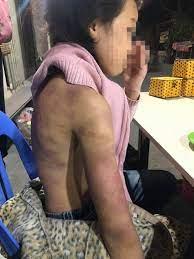 Vụ hành hạ bé gái 12 tuổi: Hành vi tàn nhẫn, xâm hại nghiêm trọng sức khỏe