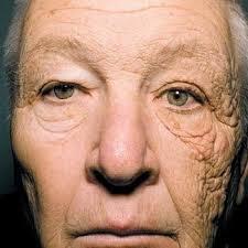 「老け顔 画像」の画像検索結果