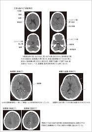 頭部ct検査頭部コンピュータ断層撮影検査脳神経系の検査看護