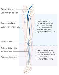 Leg Vein Chart Dvt Diagram Technical Diagrams