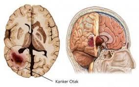 penyakit kanker otak