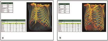 Certainty styling is being phased out topic by topic. Rib Cage Morphometric Differences Between A Normal 58 Year Old Male Download Scientific Diagram
