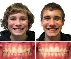 Patient Portfolio Milford Westborough Ma Family Orthodontics
