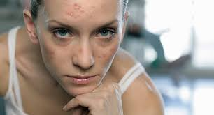 acne causes treatments more