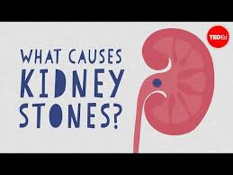 Kidney Patient Diet Chart In Telugu Kidney Stones Symptoms Complications And Removal