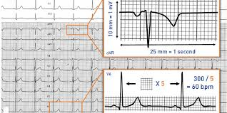 Ecg Rate Determination Chart Calibration Paper Speed And Calculation Of Heart Rate