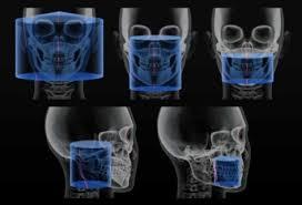 Cone Beam Dental Ct Scan Cbct Cone Beam Dental Ct Scan