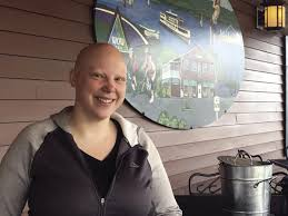 Manager at Patrick's Pub & Eatery raising awareness about alopecia | Health  & Wellness | laconiadailysun.com