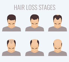 Male Pattern Baldness Stages Simple Decorating