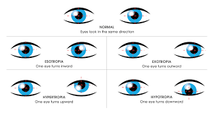 Eye Light Test For Concussion Vision Therapy Learning Related Disorders Concussion