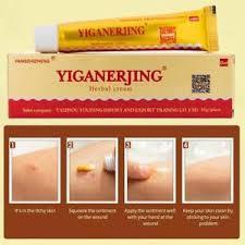 Cream Eczema Psoriasis Dermatitis Vitiligo Skin Rash Seborrhea ...