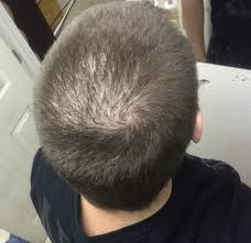 Scalp Visible Under Light Just Got A Buzzcut Is It Normal To See This Much Scalp