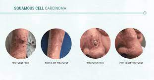 radiation causes and treats skin cancer
