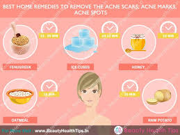 how to get rid of acne scars acne marks acne spots