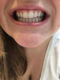 front teeth filing before and after. smile direct club refinements and real results! front teeth filing before after