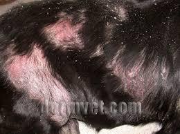 Cutaneous Epitheliotropic Lymphoma In Lacey Wa Dermatology Clinic