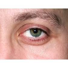 Can Eye Exercises Reduce Puffy Eyes?   Healthfully