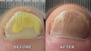 Nail Fungus? Zap It with New <b>Laser Treatment</b>! - YouTube