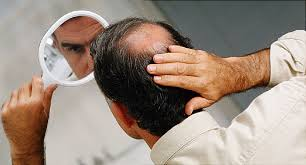 Male Pattern Baldness Causes Simple Men's Hair Loss Male Pattern Baldness And Other Causes
