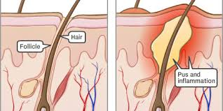Folliculitis (Infections) - Apex Dermatology & Skin Surgery