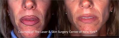 permanent make up removal before and after