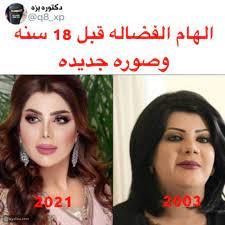 صورة لإلهام الفضالة قبل وبعد تصدم متابعيها ومي العيدان تتدخل - ليالينا