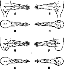 Mapping Of Dermatomes Of The Lower Extremities Based On An