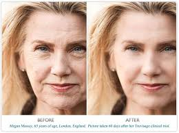 cream that works like botox best anti aging cream from cvs anti aging formular better than