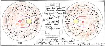 Fundus Chart Retinal Drawing At Getdrawings Com Free For Personal Use