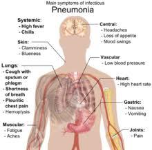Пневмония Википедия Основные симптомы инфекционной пневмонии