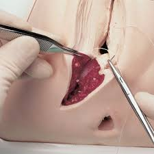 Image result for episiotomy