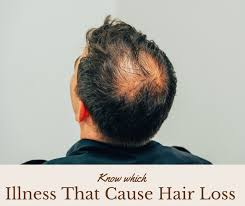know which illness that cause hair loss