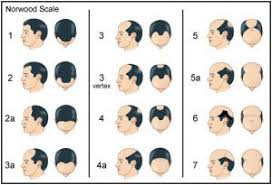 Male Pattern Baldness Causes Extraordinary Male Pattern Hair Loss The American Hair Loss Council
