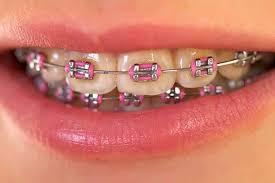 Orthodontist In Germantown Md Total Dental Care