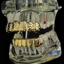 Grillz Designs Gold Nugget Teeth Grillz Set