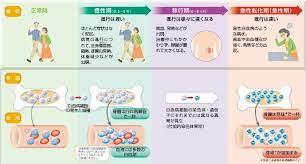 白血病 体験 談 初期 症状