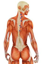 Shoulder Trigger Points Chart Myofascial Pain Syndrome Uncovering The Root Causes