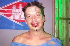 китайцы выбили туристу зубы за татуировки на лбу происшествия