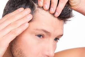 can biotin help with hair loss