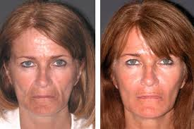 Botox facelift before after