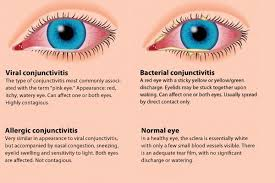 Eye Infections, Eye Injuries, Eye Allergies