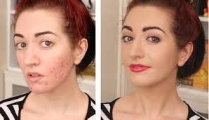 makeup for pitted acne scars before after
