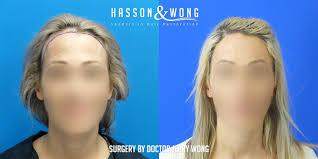 Hair Line Design Transplant Female Hair Transplant Hairline Reconstruction And Eyebrow