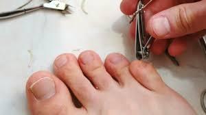 Muž Stříhání Nehtů S Clipper Muž řez Nehty Na Nohou Detail Nohy A Prsty Pohled Shora