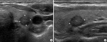 Image result for micro-papillary thyroid cancer