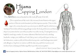 Hijama Cupping Points Chart Akh Daen Points Hcl A4 Landscape Hijama Cupping London