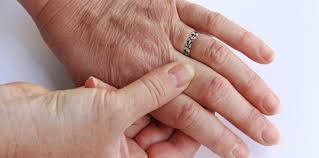 Artros fingrar symtom