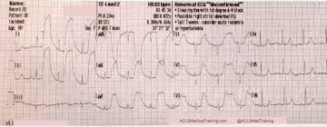Telemetry Heart Rate Chart Guide To Understanding Ecg Artifact Acls Medical Training