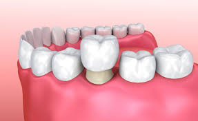 Dental Crowns | The Full Procedure Explained